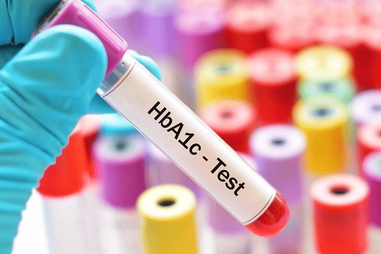 Διαβήτης τύπου 2 και Υψηλή Γλυκοζυλιωμένη Αιμοσφαιρίνη: Τι πρέπει να κάνετε