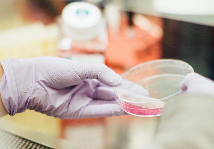 Κρεατινίνη: Τι είναι και τι σημαίνει αν είναι αυξημένη