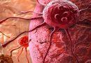 ΠΟΥ: Αύξηση κατά 81% των κρουσμάτων καρκίνου στις φτωχές χώρες ως το 2040