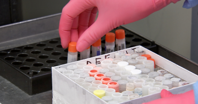 COVID-19: Θετικά αποτελέσματα του εμβολίου  που αναπτύσσει το Πανεπιστήμιο της Οξφόρδης